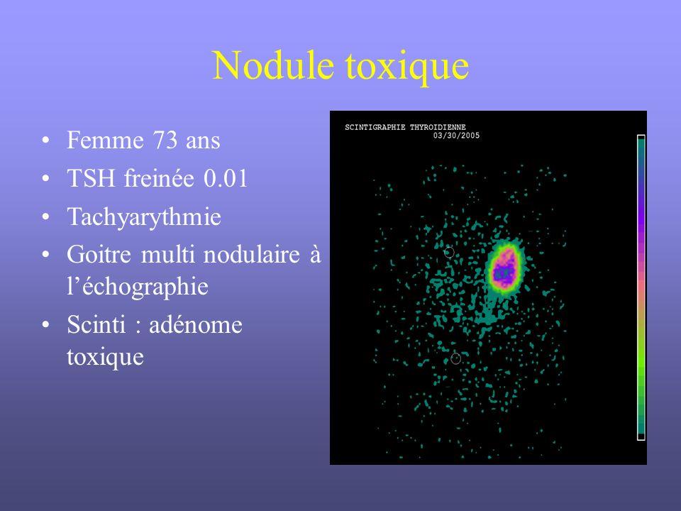 Nodule toxique Femme 73 ans TSH freinée 0.01 Tachyarythmie Goitre multi nodulaire à léchographie Scinti : adénome toxique