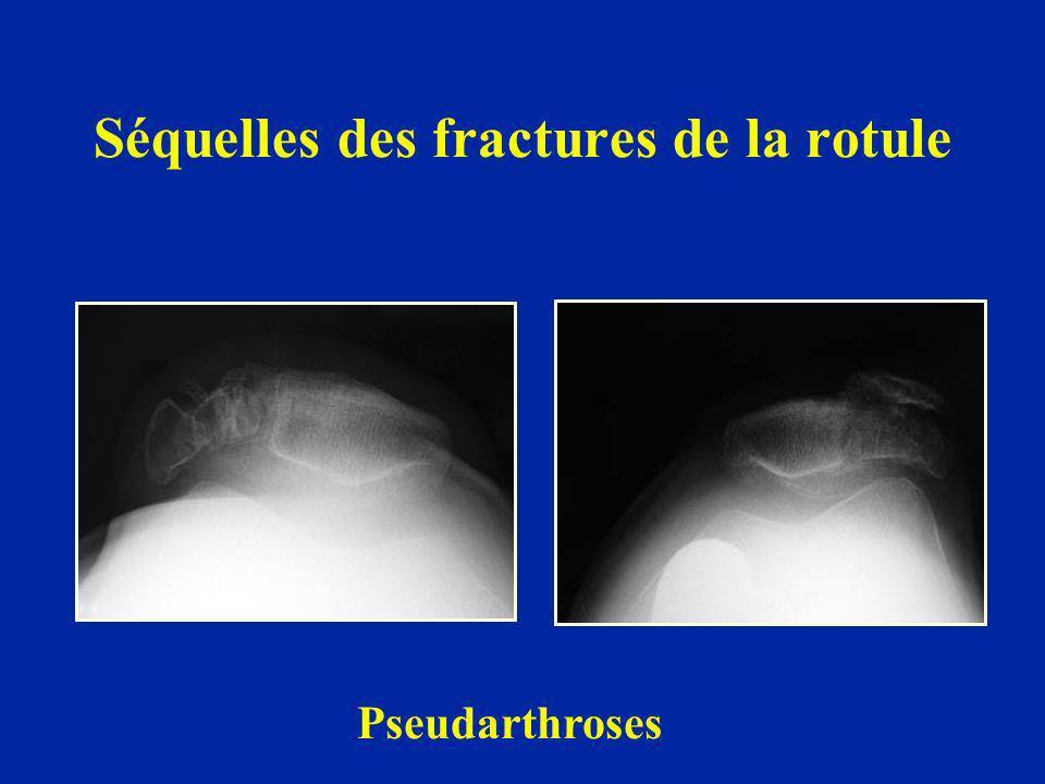 Séquelles des fractures de la rotule Pseudarthroses