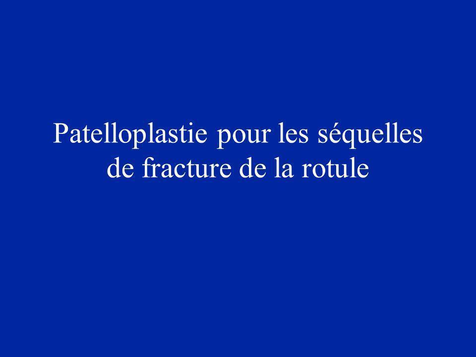 Patelloplastie pour les séquelles de fracture de la rotule