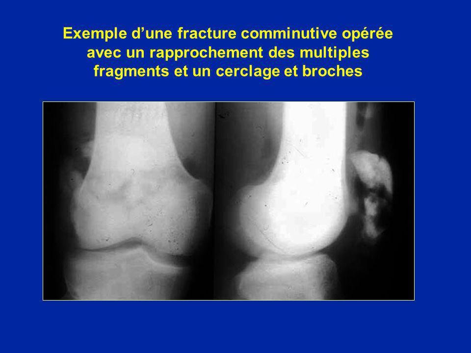 Exemple dune fracture comminutive opérée avec un rapprochement des multiples fragments et un cerclage et broches