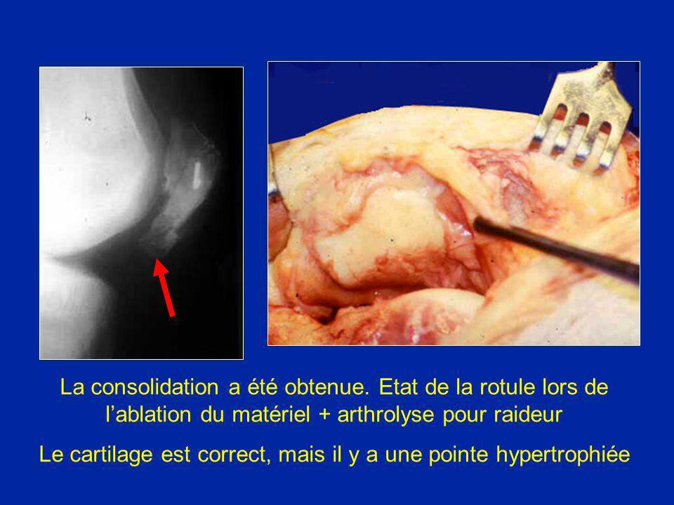 La consolidation a été obtenue. Etat de la rotule lors de lablation du matériel + arthrolyse pour raideur Le cartilage est correct, mais il y a une po
