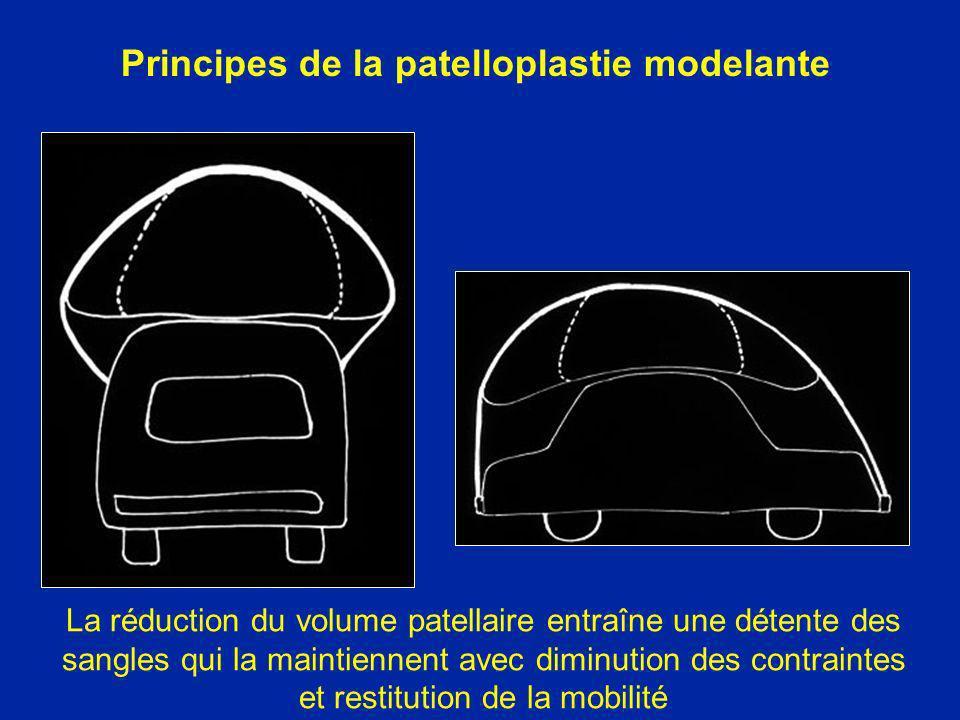 La réduction du volume patellaire entraîne une détente des sangles qui la maintiennent avec diminution des contraintes et restitution de la mobilité P
