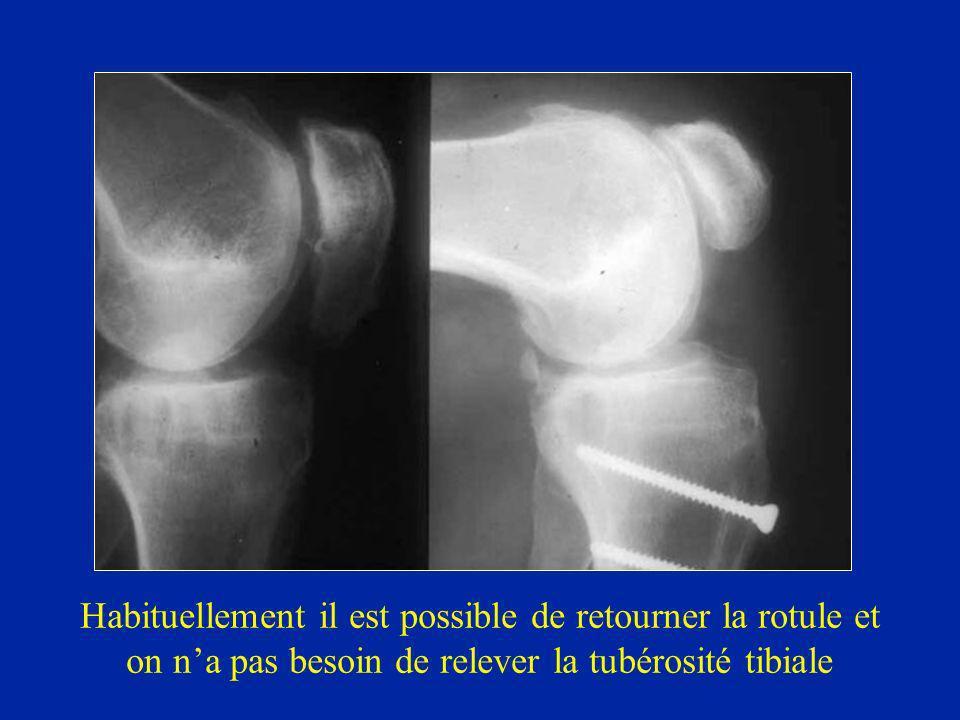Habituellement il est possible de retourner la rotule et on na pas besoin de relever la tubérosité tibiale
