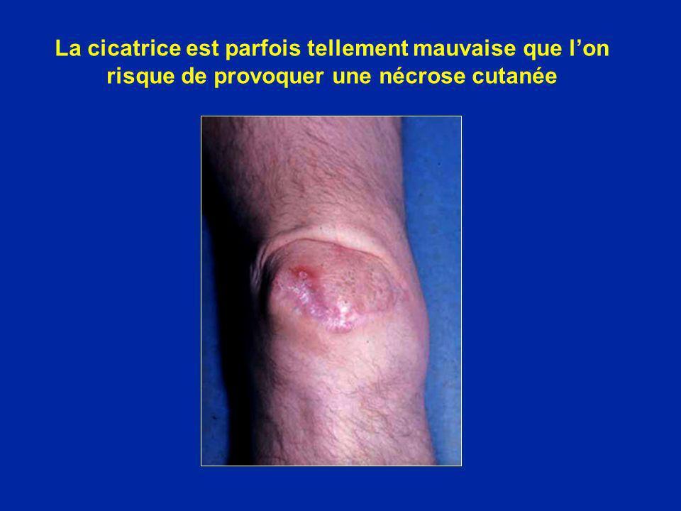 La cicatrice est parfois tellement mauvaise que lon risque de provoquer une nécrose cutanée