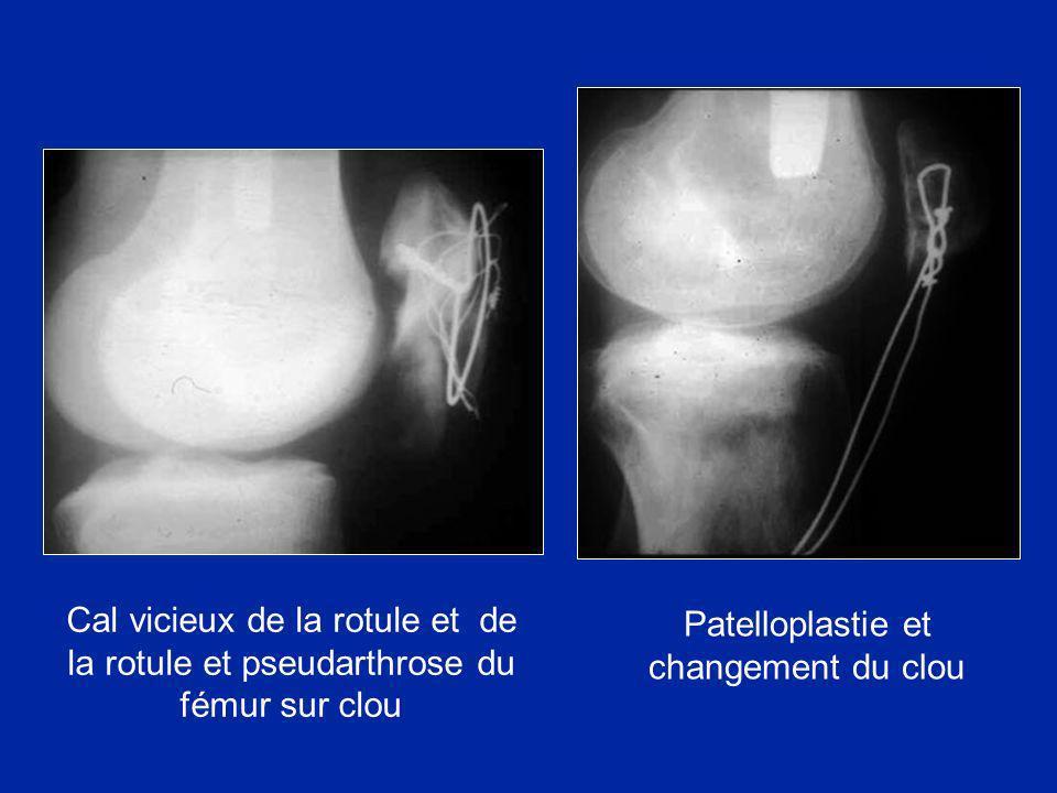 Cal vicieux de la rotule et de la rotule et pseudarthrose du fémur sur clou Patelloplastie et changement du clou