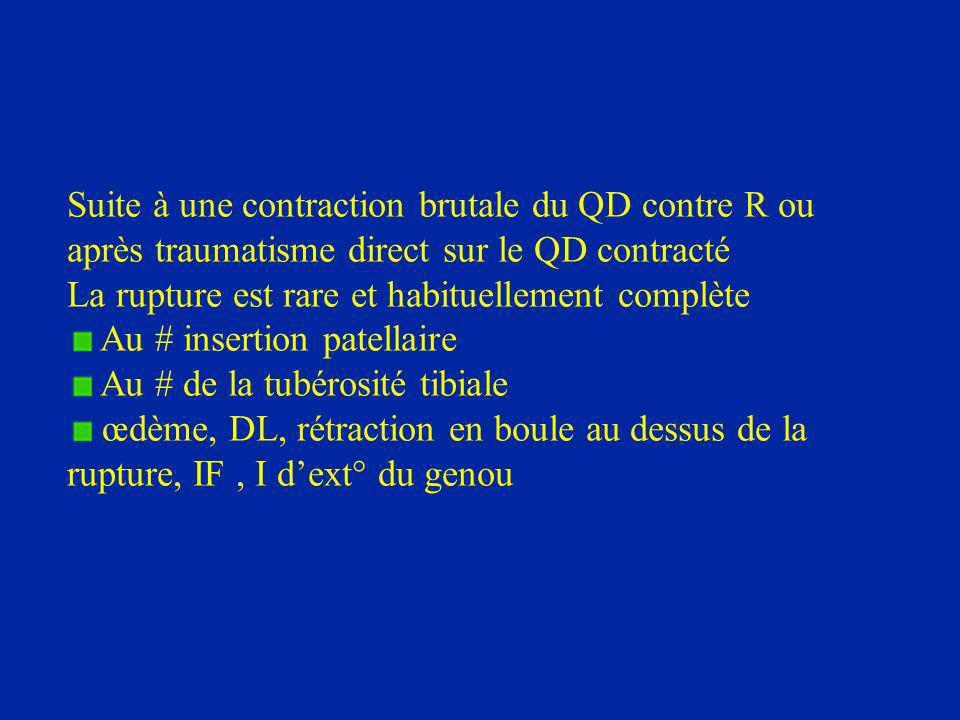 Suite à une contraction brutale du QD contre R ou après traumatisme direct sur le QD contracté La rupture est rare et habituellement complète Au # ins