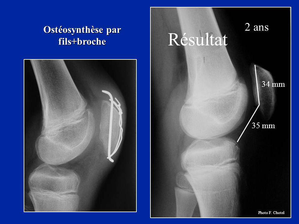 Résultat 2 ans 34 mm 35 mm Ostéosynthèse par fils+broche Photo F. Chotel