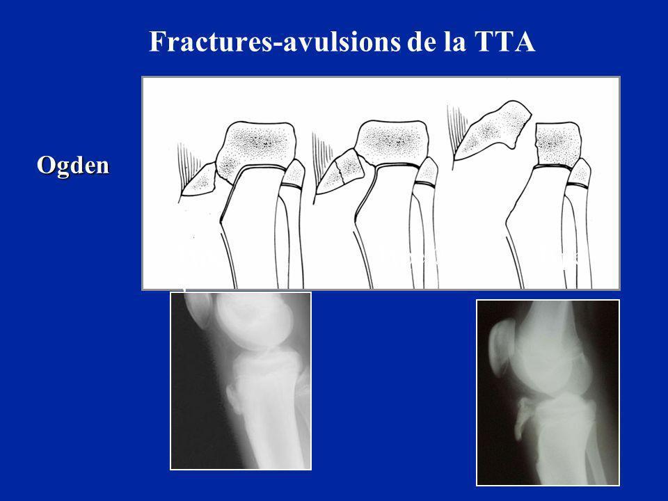Fractures-avulsions de la TTA Type 1 Type 2 Type 3 Ogden