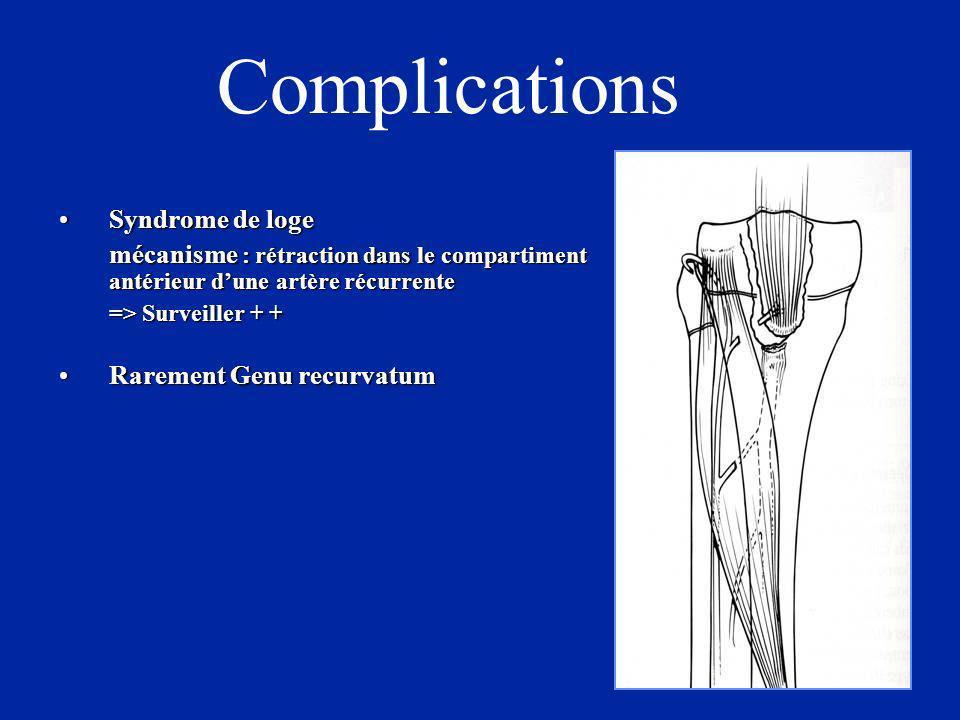 Complications Syndrome de logeSyndrome de loge mécanisme : rétraction dans le compartiment antérieur dune artère récurrente => Surveiller + + Rarement