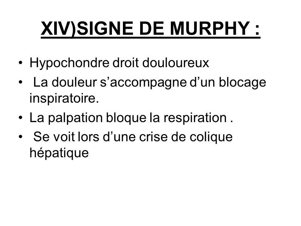 XIV)SIGNE DE MURPHY : Hypochondre droit douloureux La douleur saccompagne dun blocage inspiratoire. La palpation bloque la respiration. Se voit lors d