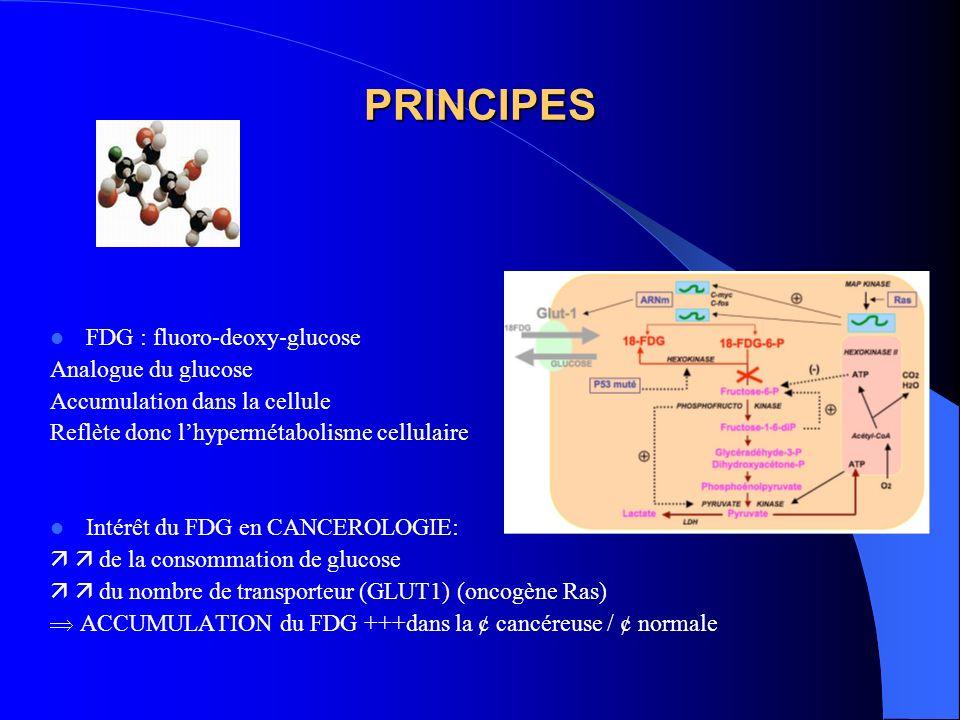 PRINCIPES FDG : fluoro-deoxy-glucose Analogue du glucose Accumulation dans la cellule Reflète donc lhypermétabolisme cellulaire Intérêt du FDG en CANC