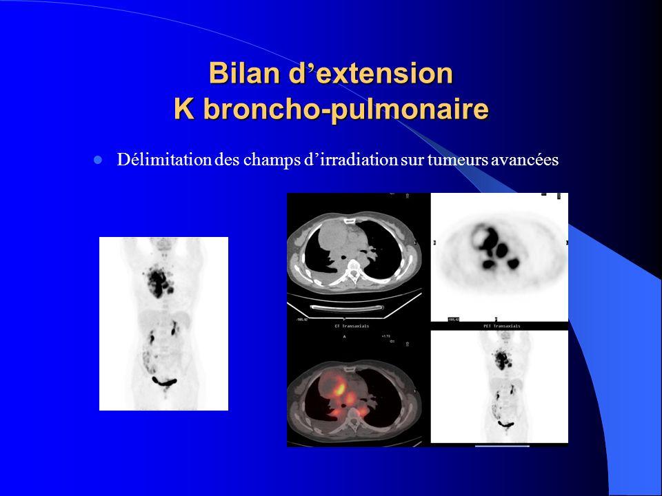 Bilan d extension K broncho-pulmonaire Délimitation des champs dirradiation sur tumeurs avancées