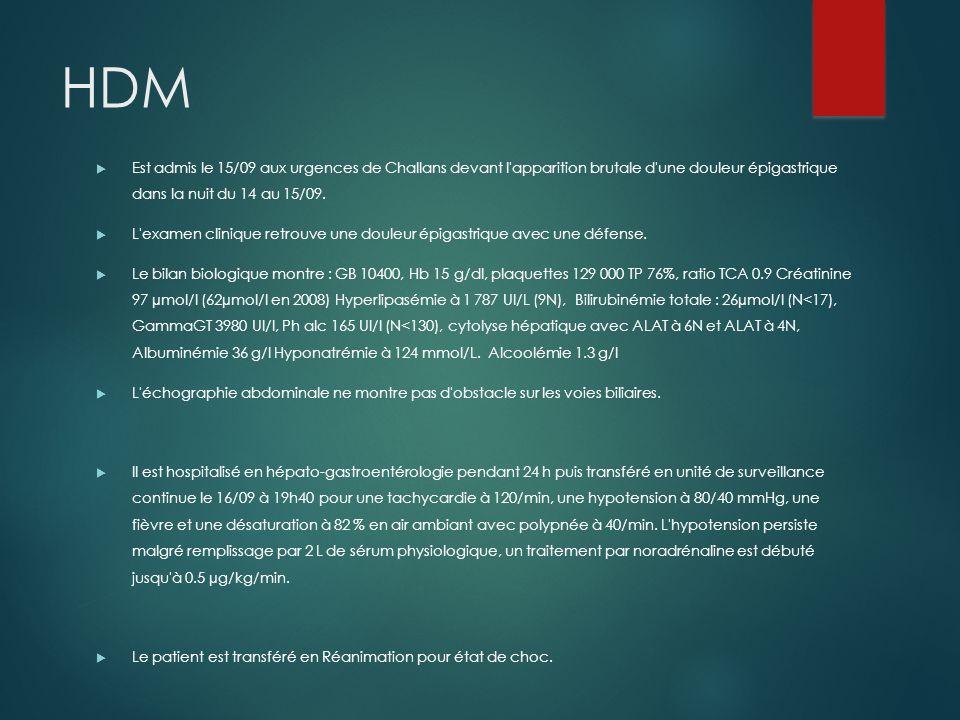 HDM Est admis le 15/09 aux urgences de Challans devant l'apparition brutale d'une douleur épigastrique dans la nuit du 14 au 15/09. L'examen clinique