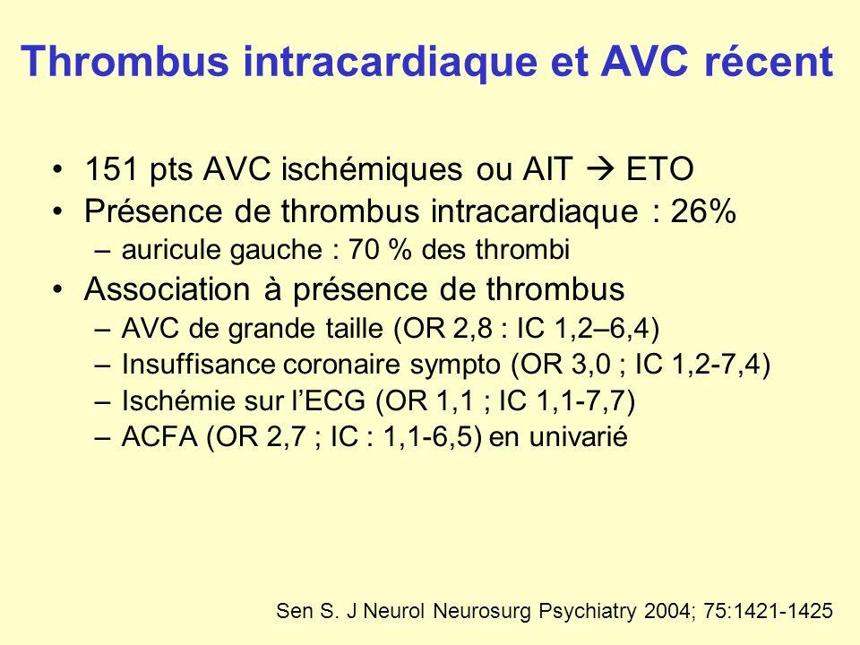 Thrombus intracardiaque et AVC récent 151 pts AVC ischémiques ou AIT ETO Présence de thrombus intracardiaque : 26% –auricule gauche : 70 % des thrombi