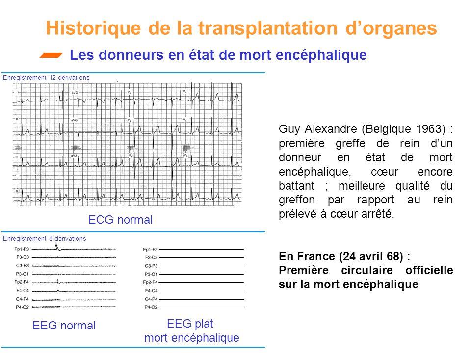 Historique de la transplantation dorganes ECG normal EEG normal Les donneurs en état de mort encéphalique EEG plat mort encéphalique Enregistrement 12