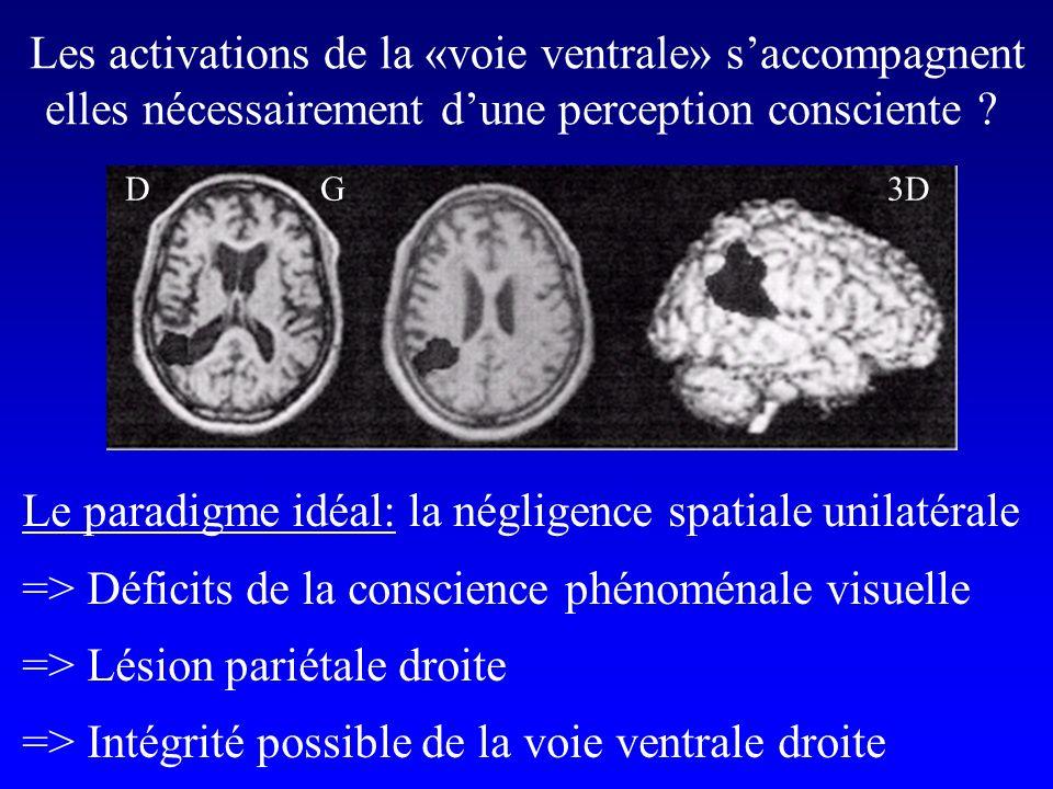 DG3D Les activations de la «voie ventrale» saccompagnent elles nécessairement dune perception consciente ? Le paradigme idéal: la négligence spatiale