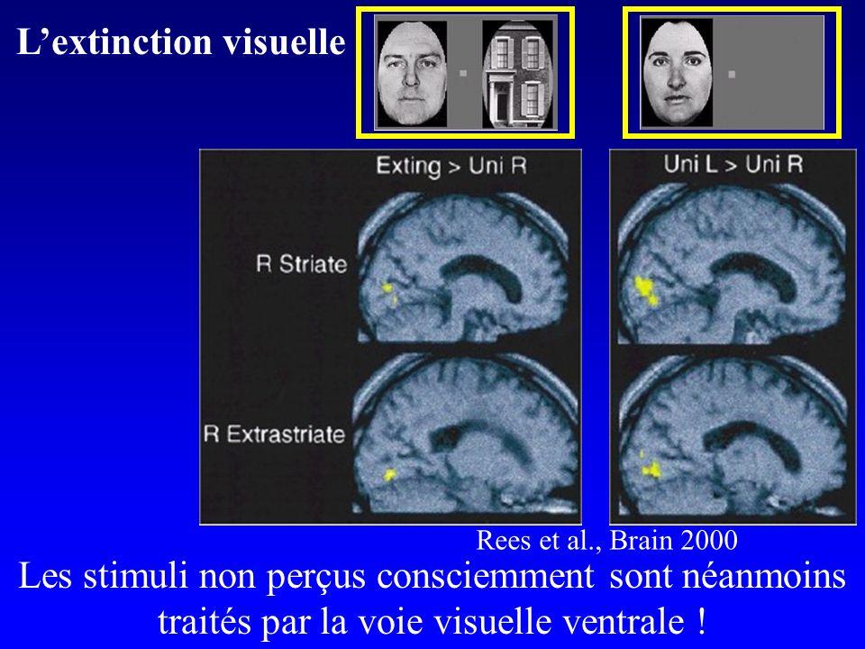 ++ Les stimuli non perçus consciemment sont néanmoins traités par la voie visuelle ventrale ! Lextinction visuelle Rees et al., Brain 2000