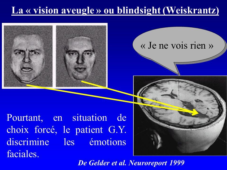 La « vision aveugle » ou blindsight (Weiskrantz) Pourtant, en situation de choix forcé, le patient G.Y. discrimine les émotions faciales. « Je ne vois