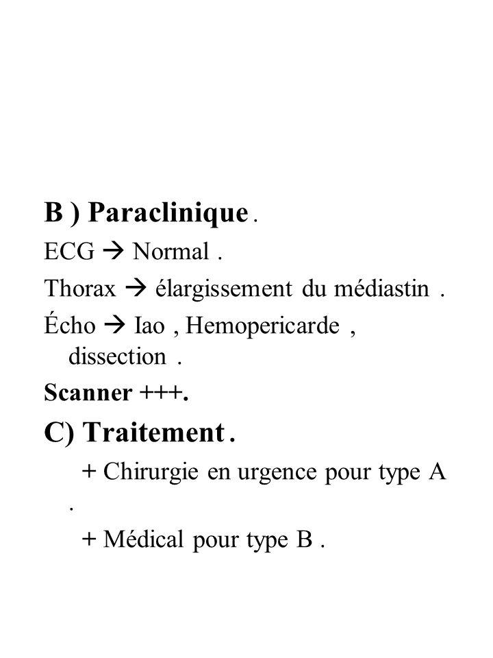 B ) Paraclinique. ECG Normal. Thorax élargissement du médiastin. Écho Iao, Hemopericarde, dissection. Scanner +++. C) Traitement. + Chirurgie en urgen