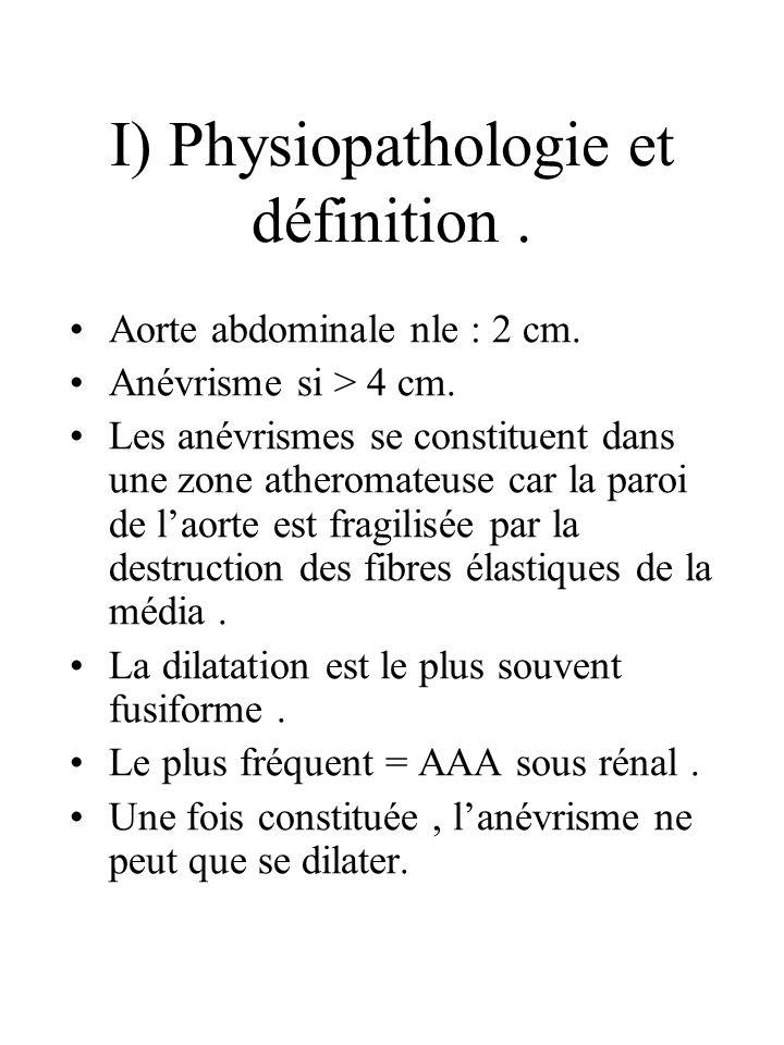 I) Physiopathologie et définition. Aorte abdominale nle : 2 cm. Anévrisme si > 4 cm. Les anévrismes se constituent dans une zone atheromateuse car la