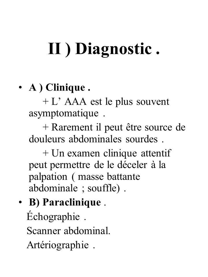 II ) Diagnostic. A ) Clinique. + L AAA est le plus souvent asymptomatique. + Rarement il peut être source de douleurs abdominales sourdes. + Un examen