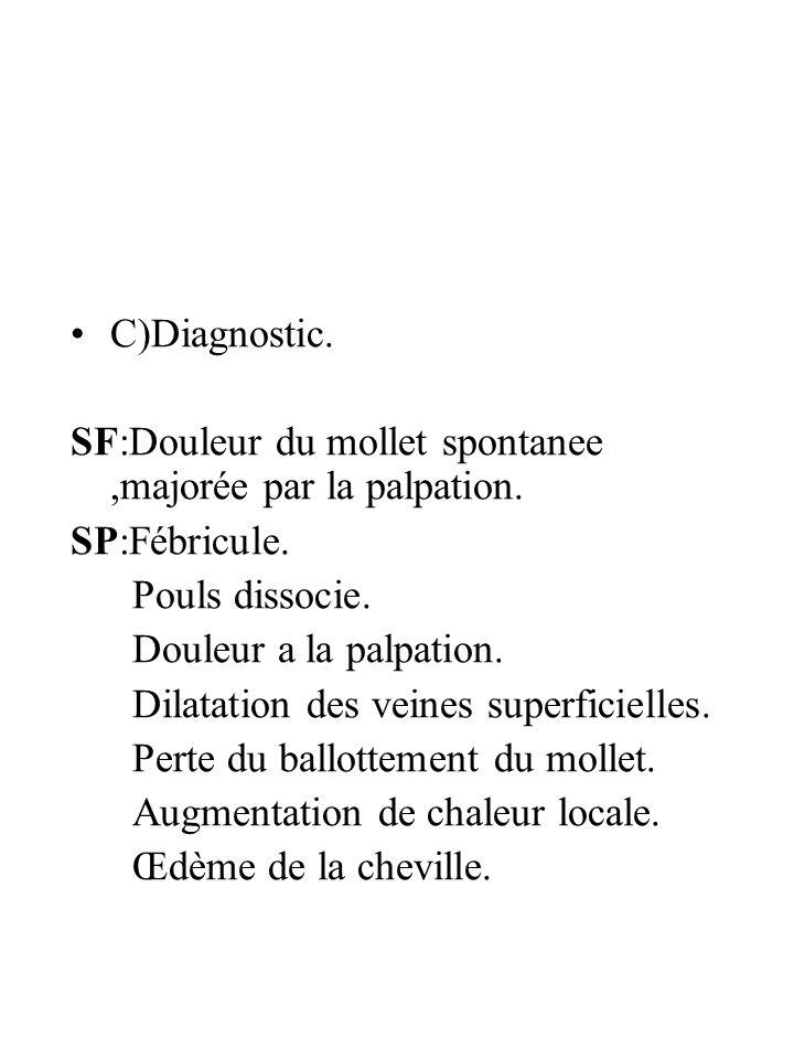 C)Diagnostic. SF:Douleur du mollet spontanee,majorée par la palpation. SP:Fébricule. Pouls dissocie. Douleur a la palpation. Dilatation des veines sup