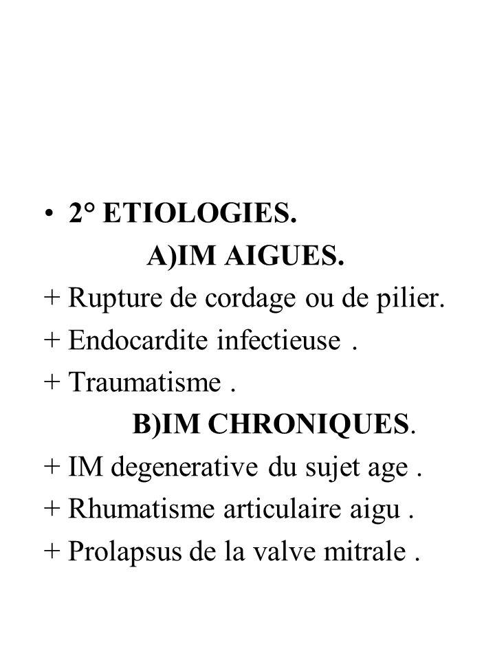2° ETIOLOGIES. A)IM AIGUES. + Rupture de cordage ou de pilier. + Endocardite infectieuse. + Traumatisme. B)IM CHRONIQUES. + IM degenerative du sujet a