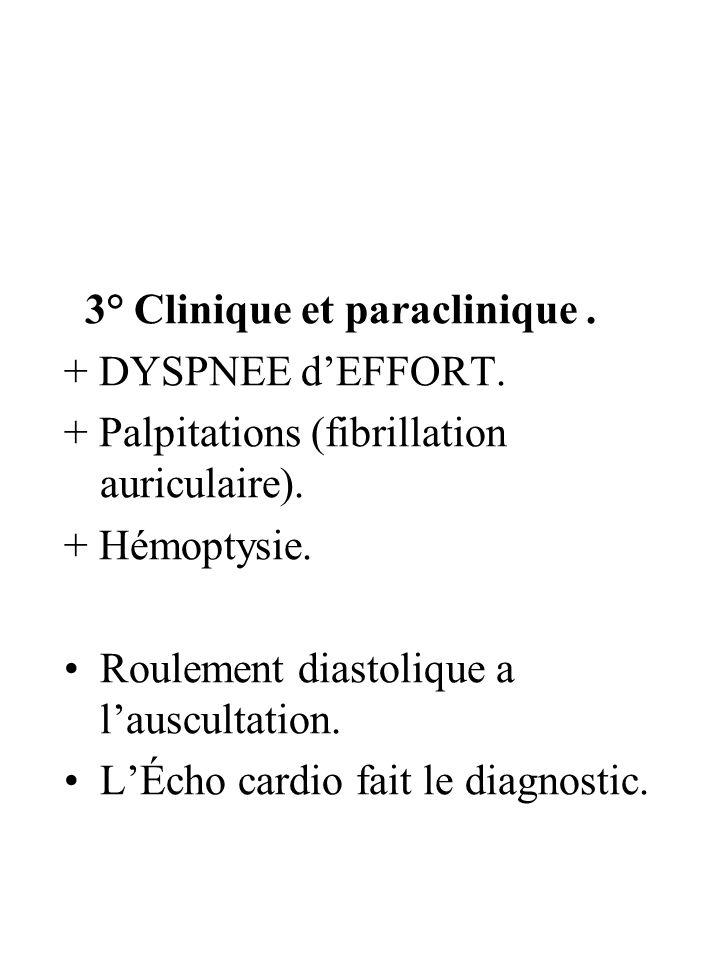 3° Clinique et paraclinique. + DYSPNEE dEFFORT. + Palpitations (fibrillation auriculaire). + Hémoptysie. Roulement diastolique a lauscultation. LÉcho