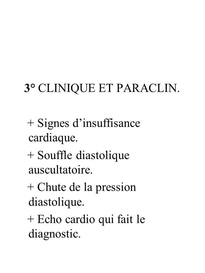 3° CLINIQUE ET PARACLIN. + Signes dinsuffisance cardiaque. + Souffle diastolique auscultatoire. + Chute de la pression diastolique. + Echo cardio qui