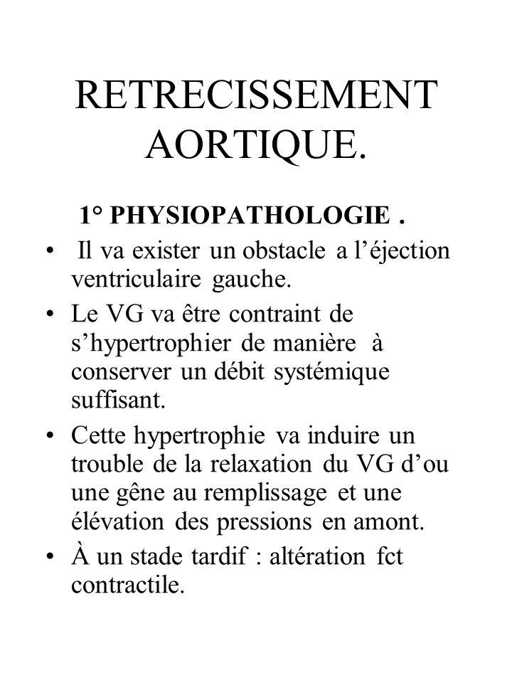 RETRECISSEMENT AORTIQUE. 1° PHYSIOPATHOLOGIE. Il va exister un obstacle a léjection ventriculaire gauche. Le VG va être contraint de shypertrophier de