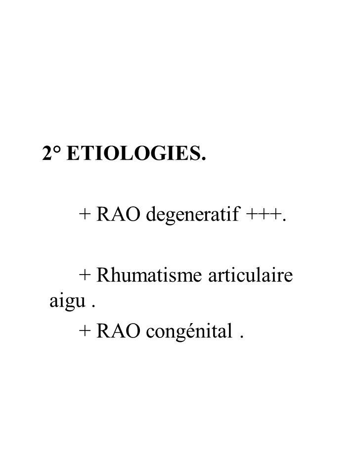 2° ETIOLOGIES. + RAO degeneratif +++. + Rhumatisme articulaire aigu. + RAO congénital.