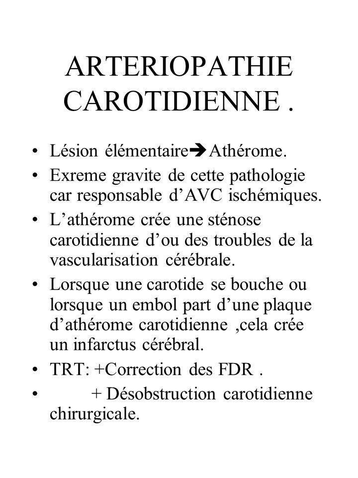 ARTERIOPATHIE CAROTIDIENNE. Lésion élémentaire Athérome. Exreme gravite de cette pathologie car responsable dAVC ischémiques. Lathérome crée une sténo