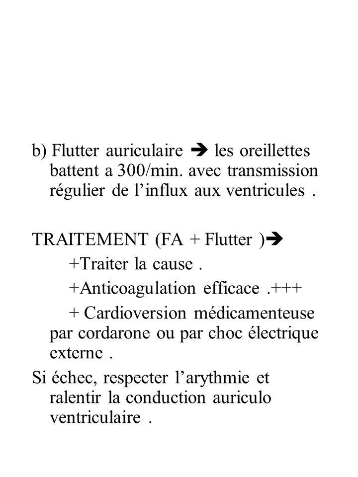 b) Flutter auriculaire les oreillettes battent a 300/min. avec transmission régulier de linflux aux ventricules. TRAITEMENT (FA + Flutter ) +Traiter l