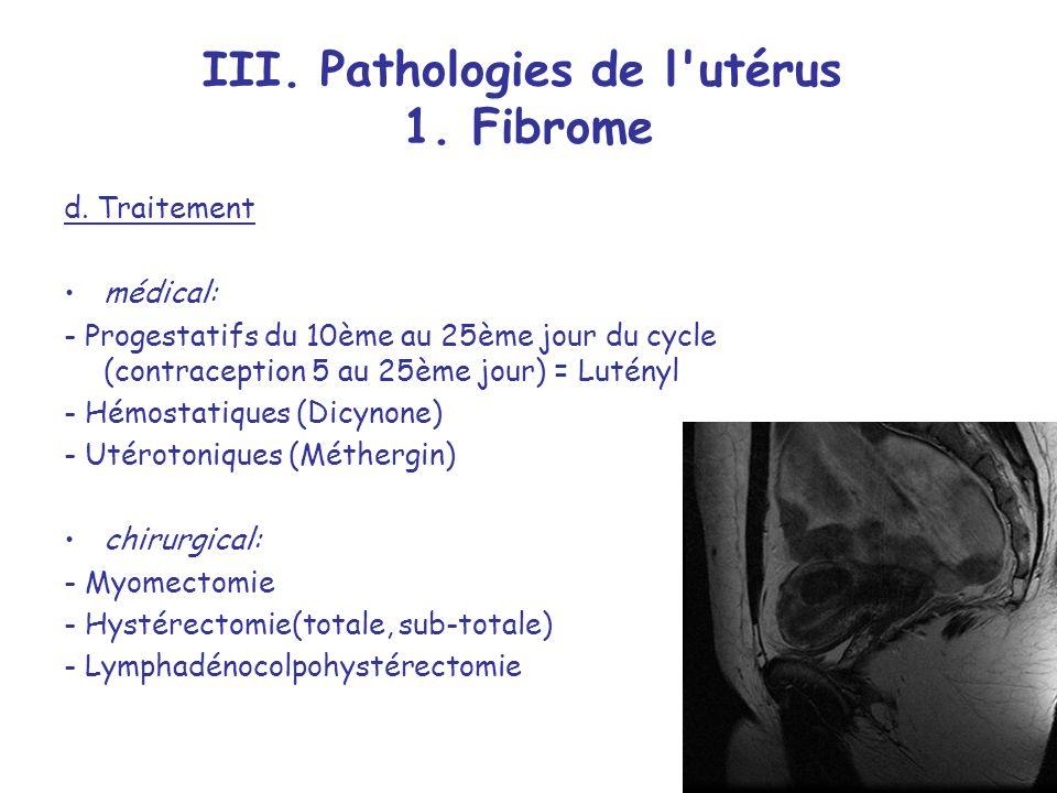 III.Pathologies de l utérus 1. Fibrome d.