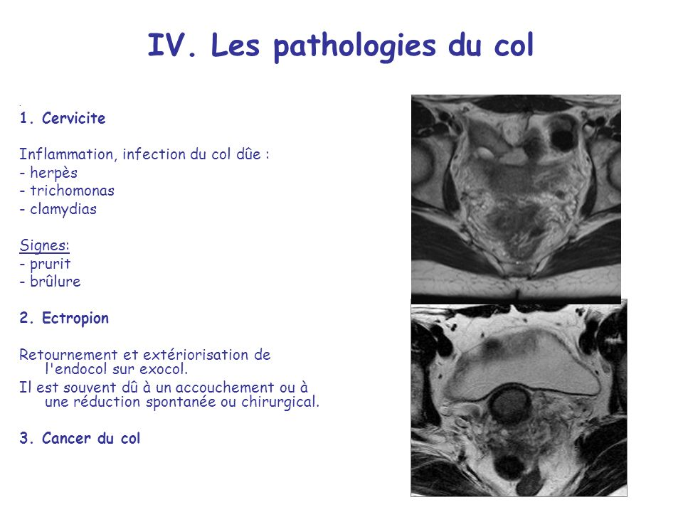 IV.Les pathologies du col 1.