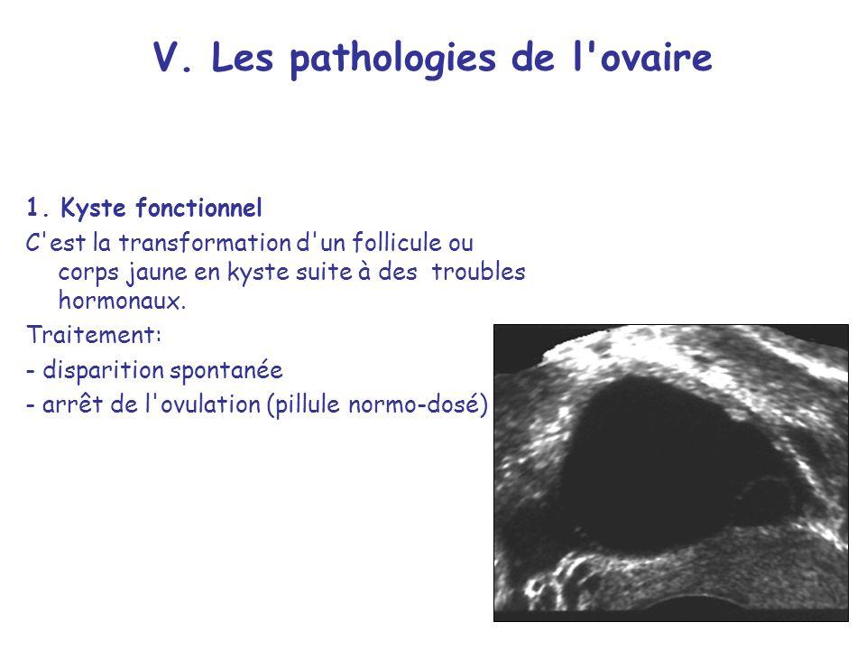 V.Les pathologies de l ovaire 1.