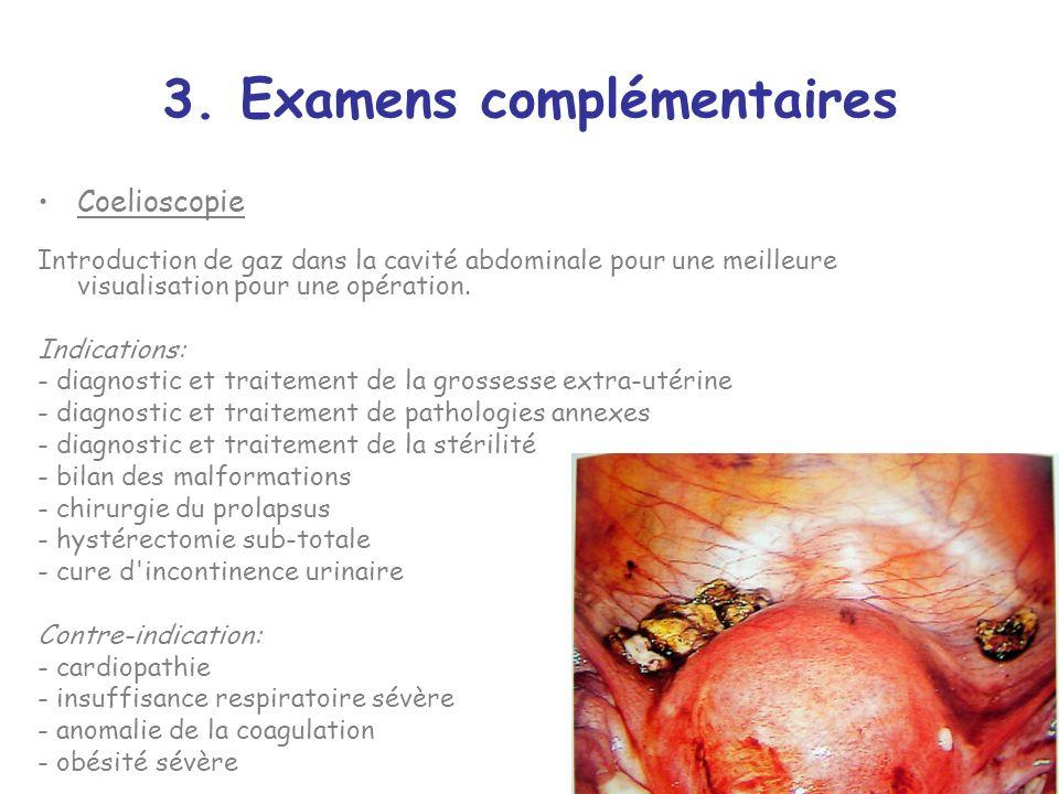 3. Examens complémentaires Coelioscopie Introduction de gaz dans la cavité abdominale pour une meilleure visualisation pour une opération. Indications
