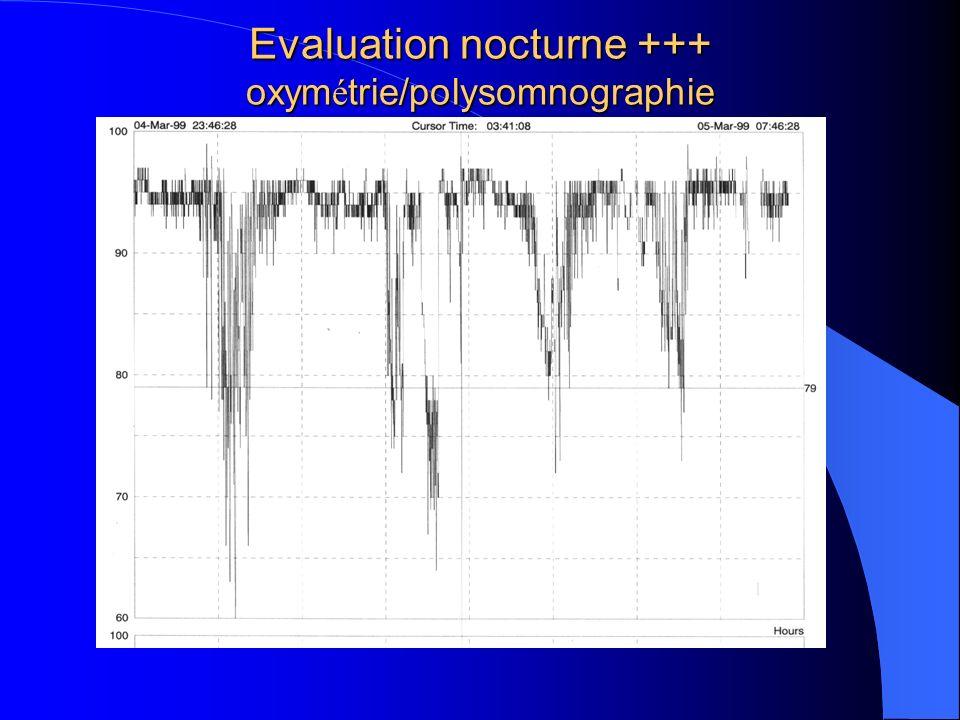 Evaluation nocturne +++ oxym é trie/polysomnographie