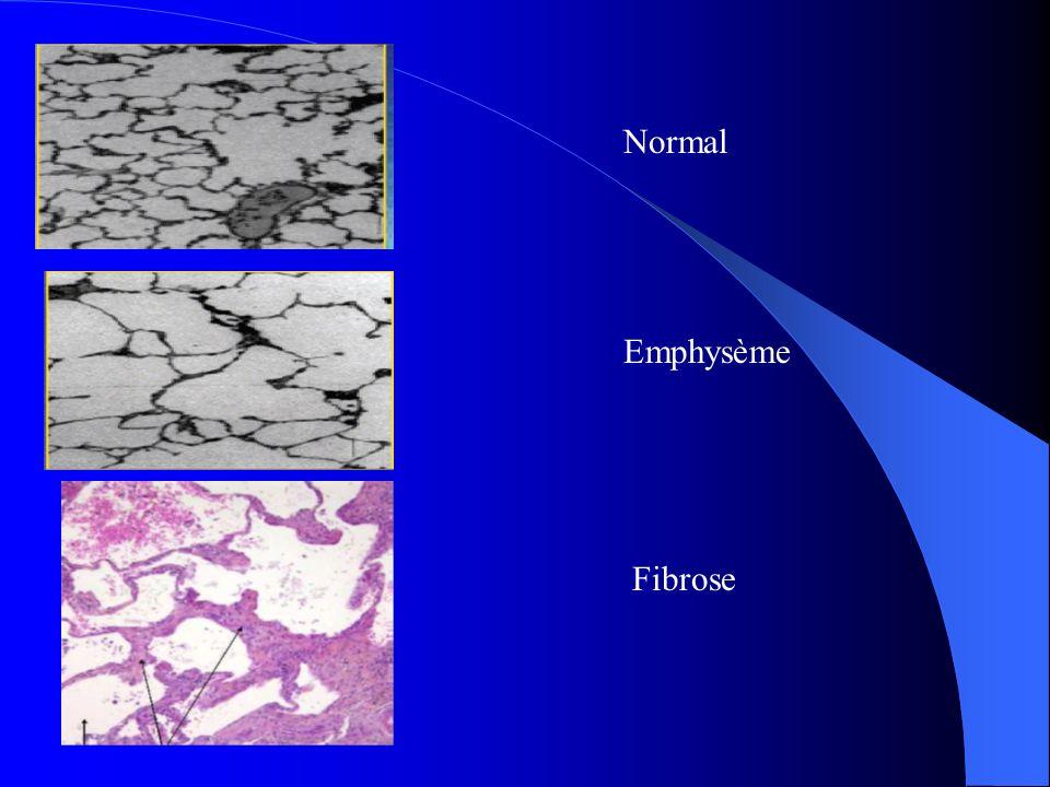 Normal Emphysème Fibrose