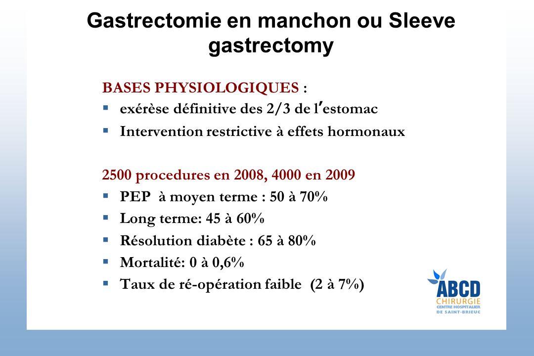 Gastrectomie en manchon ou Sleeve gastrectomy BASES PHYSIOLOGIQUES : exérèse définitive des 2/3 de lestomac Intervention restrictive à effets hormonau