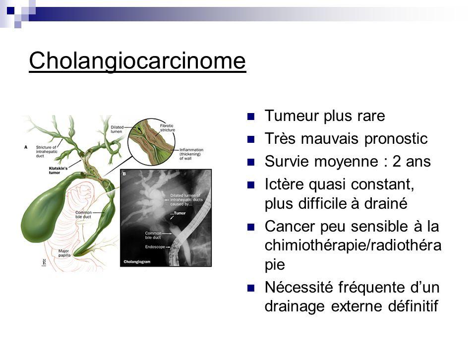 Cholangiocarcinome Tumeur plus rare Très mauvais pronostic Survie moyenne : 2 ans Ictère quasi constant, plus difficile à drainé Cancer peu sensible à