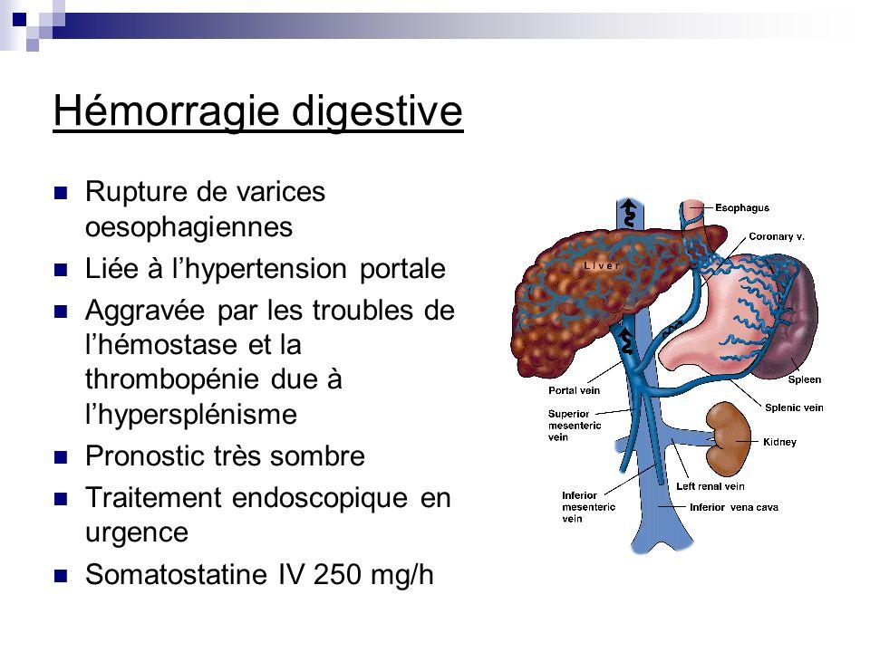 Hémorragie digestive Rupture de varices oesophagiennes Liée à lhypertension portale Aggravée par les troubles de lhémostase et la thrombopénie due à l
