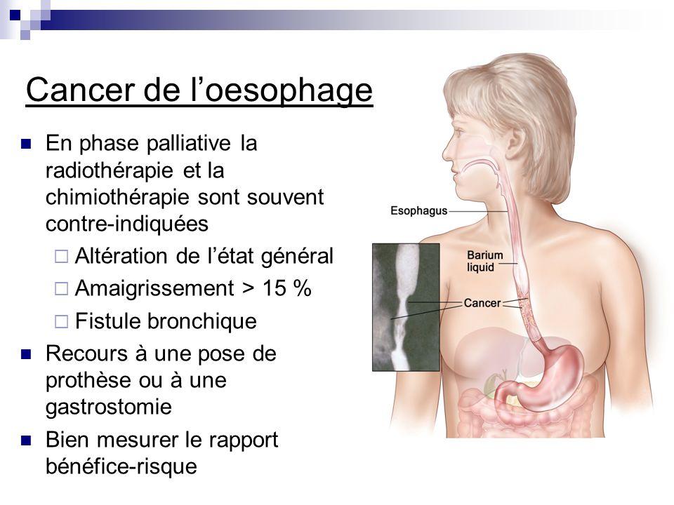 En phase palliative la radiothérapie et la chimiothérapie sont souvent contre-indiquées Altération de létat général Amaigrissement > 15 % Fistule bron