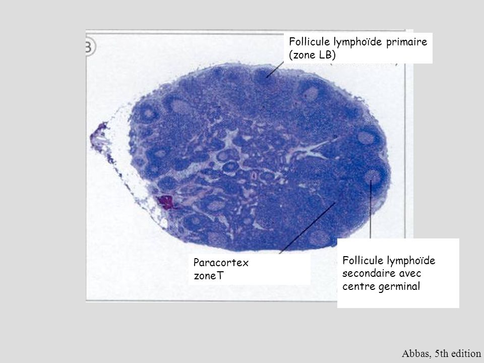 Abbas, 5th edition Follicule lymphoïde primaire (zone LB) Follicule lymphoïde secondaire avec centre germinal Paracortex zoneT