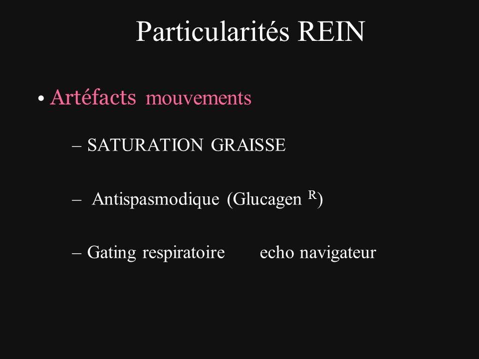 Particularités REIN Artéfacts mouvements –SATURATION GRAISSE – Antispasmodique (Glucagen R ) –Gating respiratoire echo navigateur