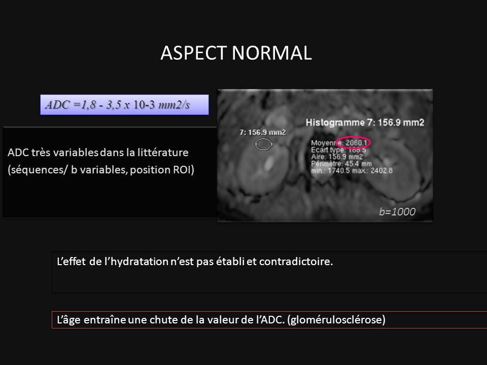 ADC très variables dans la littérature (séquences/ b variables, position ROI) ASPECT NORMAL b=1000 ADC =1,8 - 3,5 x 10-3 mm2/s Leffet de lhydratation