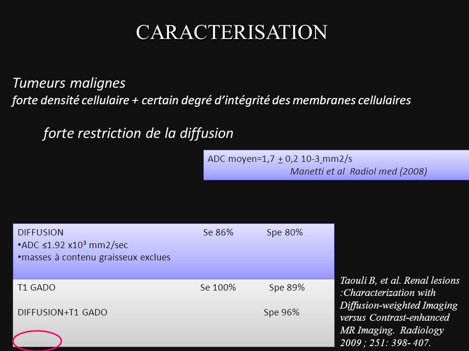 CARACTERISATIONCARACTERISATION Tumeurs malignes forte densité cellulaire + certain degré dintégrité des membranes cellulaires forte restriction de la