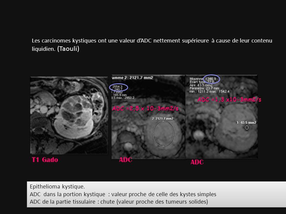 ADC =2,5 x 10-3mm2/s ADC =1,3 x10-3mm2/s Les carcinomes kystiques ont une valeur dADC nettement supérieure à cause de leur contenu liquidien. (Taouli)