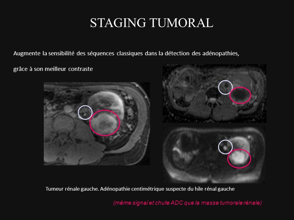Augmente la sensibilité des séquences classiques dans la détection des adénopathies, grâce à son meilleur contraste Tumeur rénale gauche. Adénopathie