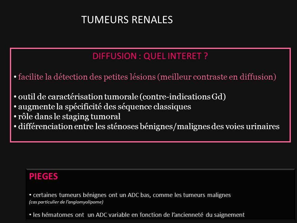 TUMEURS RENALES DIFFUSION : QUEL INTERET ? facilite la détection des petites lésions (meilleur contraste en diffusion) outil de caractérisation tumora